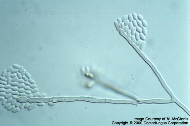 Wangiella Species