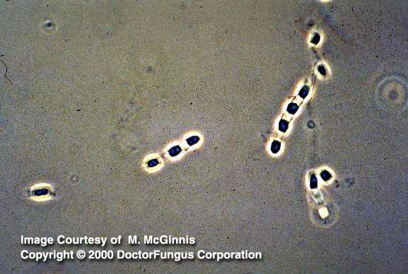 Coccidioides Species