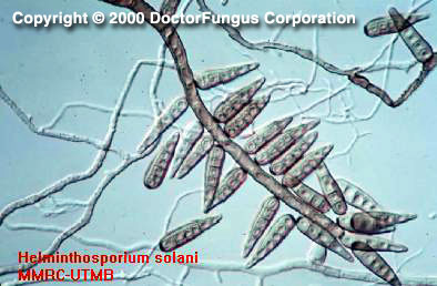 Helminthosporium Species