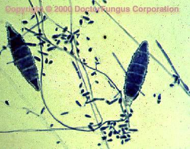 Microsporum Species