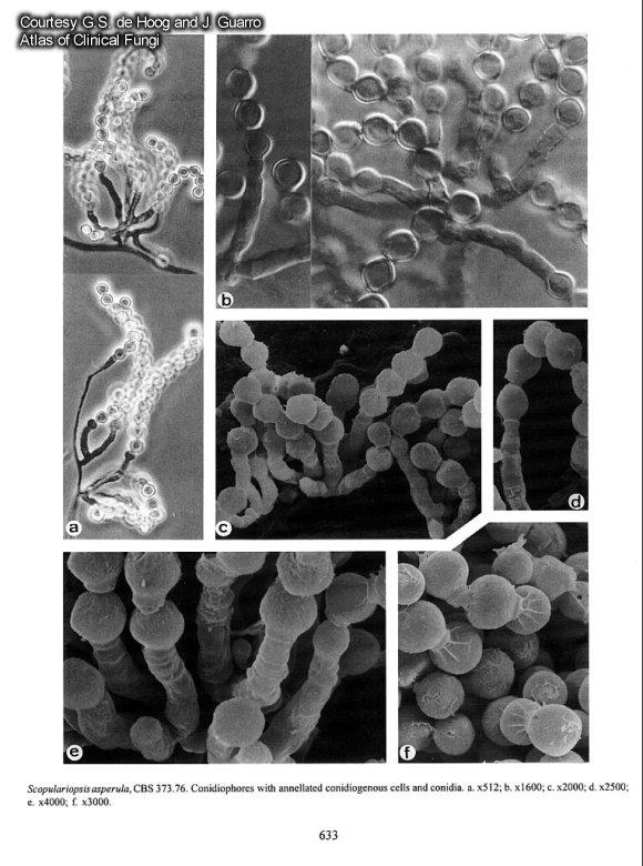 Scopulariopsis asperula