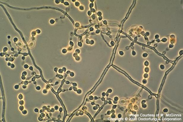 Scopulariopsis brumptii